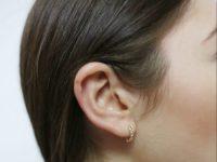 Открытое слухопротезирование